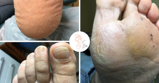 Łuszczyca skórna i paznokciowa