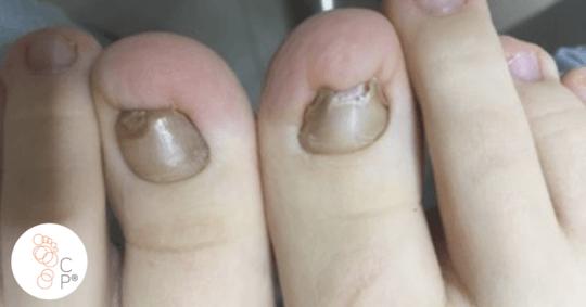 Paznokcie wkręcające się po zabiegu chirurgicznym
